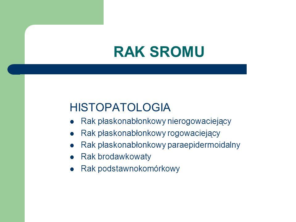 RAK SROMU HISTOPATOLOGIA Rak płaskonabłonkowy nierogowaciejący