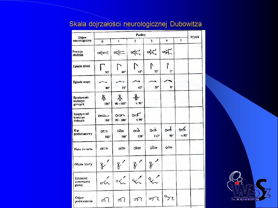 Skala dojrzałości neurologicznej Dubowitza