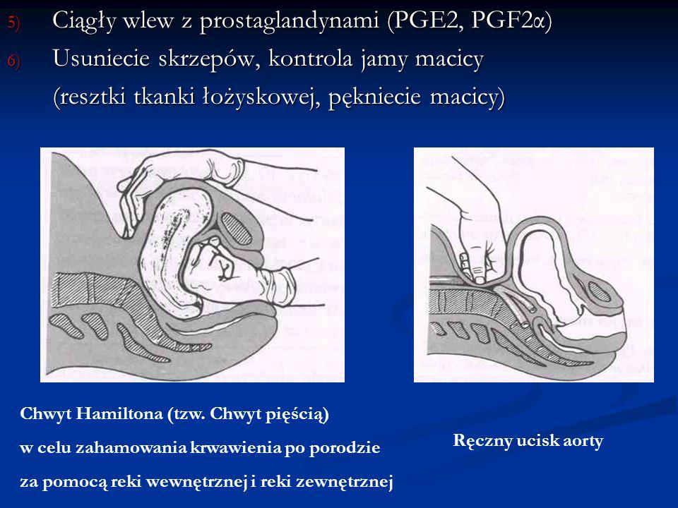 Ciągły wlew z prostaglandynami (PGE2, PGF2α)