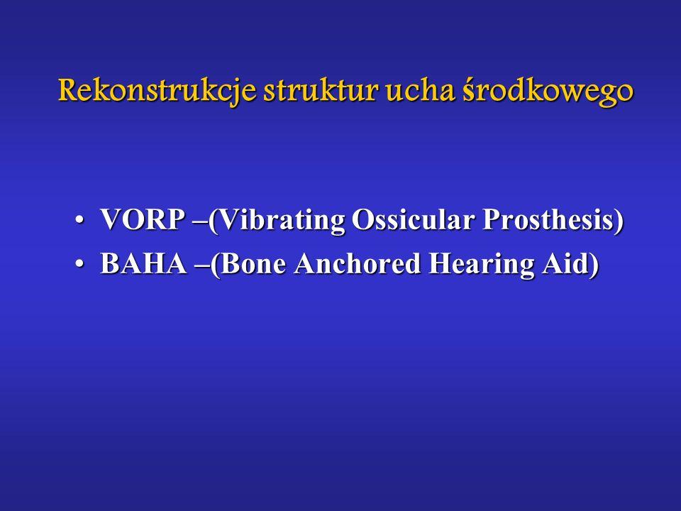 Rekonstrukcje struktur ucha środkowego