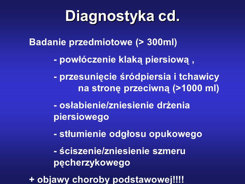 Diagnostyka cd. Badanie przedmiotowe (> 300ml)