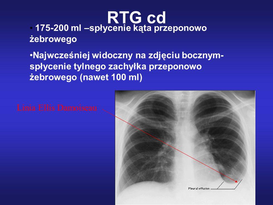 RTG cd 175-200 ml –spłycenie kąta przeponowo żebrowego