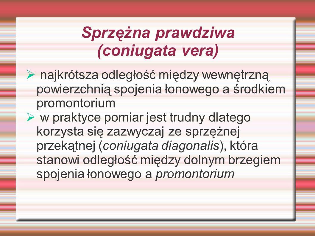 Sprzężna prawdziwa (coniugata vera)