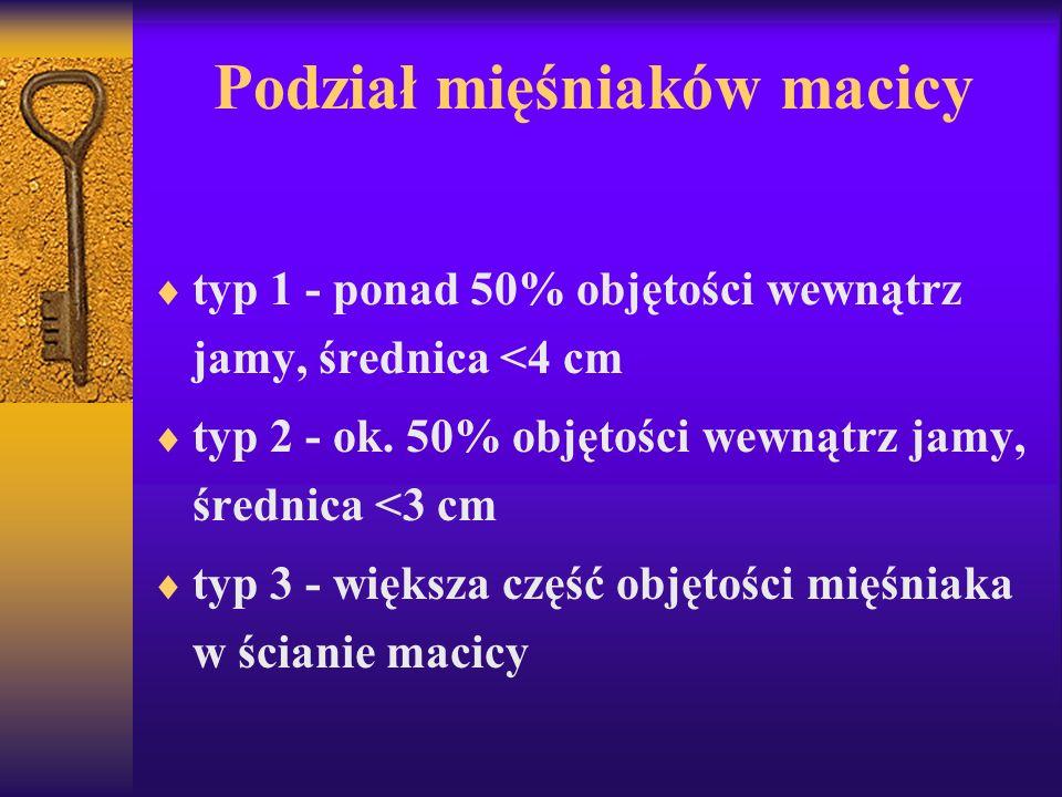 Podział mięśniaków macicy