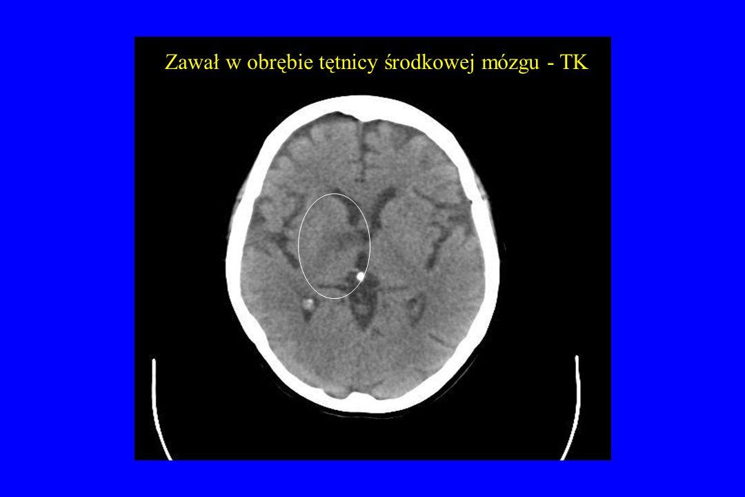 Zawał w obrębie tętnicy środkowej mózgu - TK