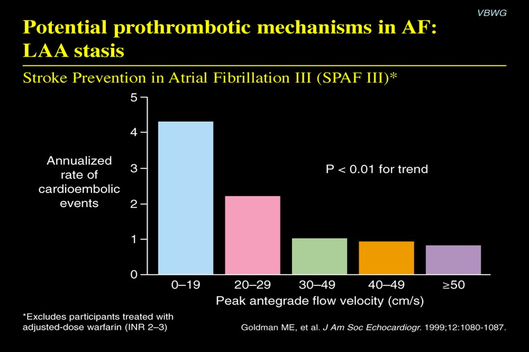 Potential prothrombotic mechanisms in AF: LAA stasis Content Points: