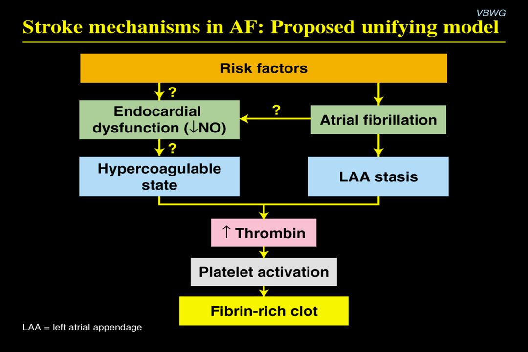 Stroke mechanisms in AF: Proposed unifying model Content Points: