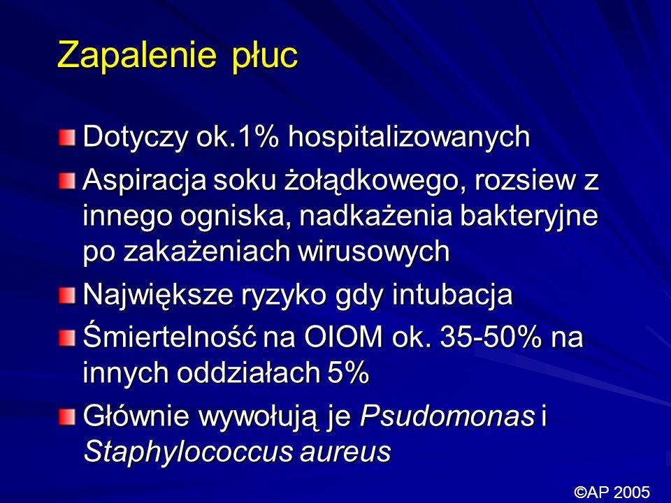 Zapalenie płuc Dotyczy ok.1% hospitalizowanych
