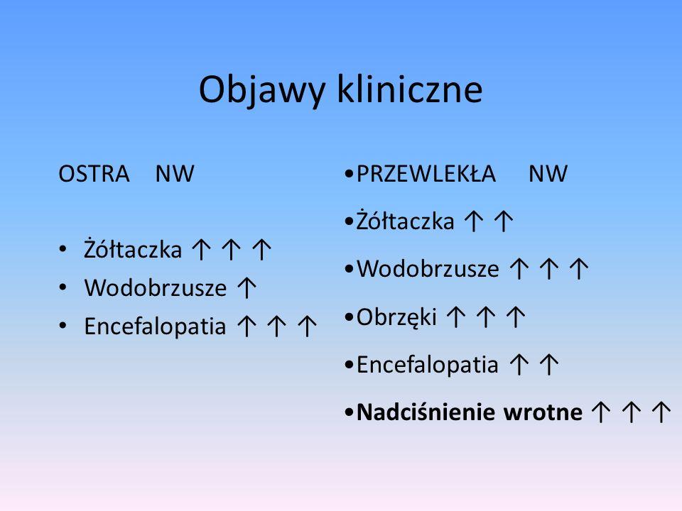Objawy kliniczne OSTRA NW Żółtaczka ↑ ↑ ↑ Wodobrzusze ↑