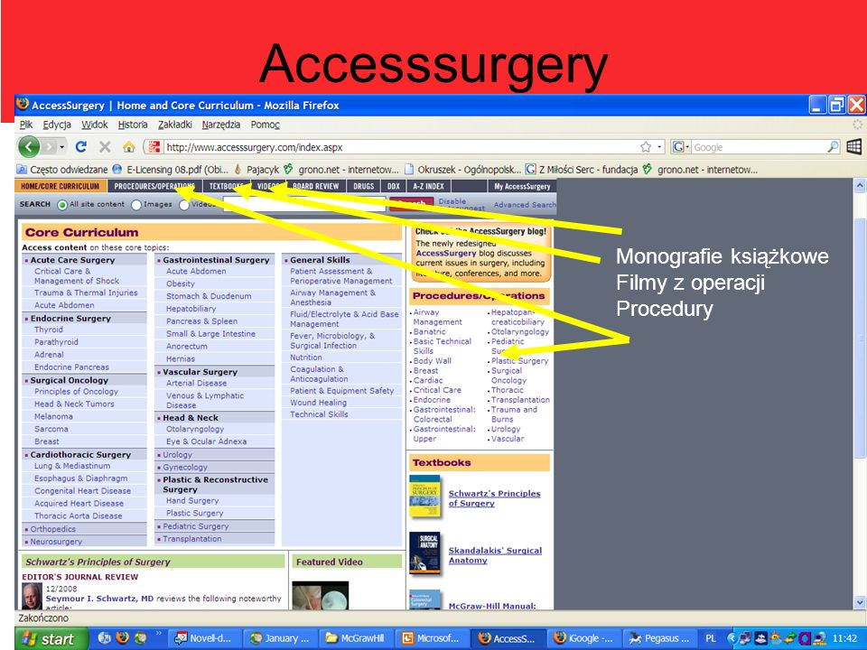 Accesssurgery Monografie książkowe Filmy z operacji Procedury