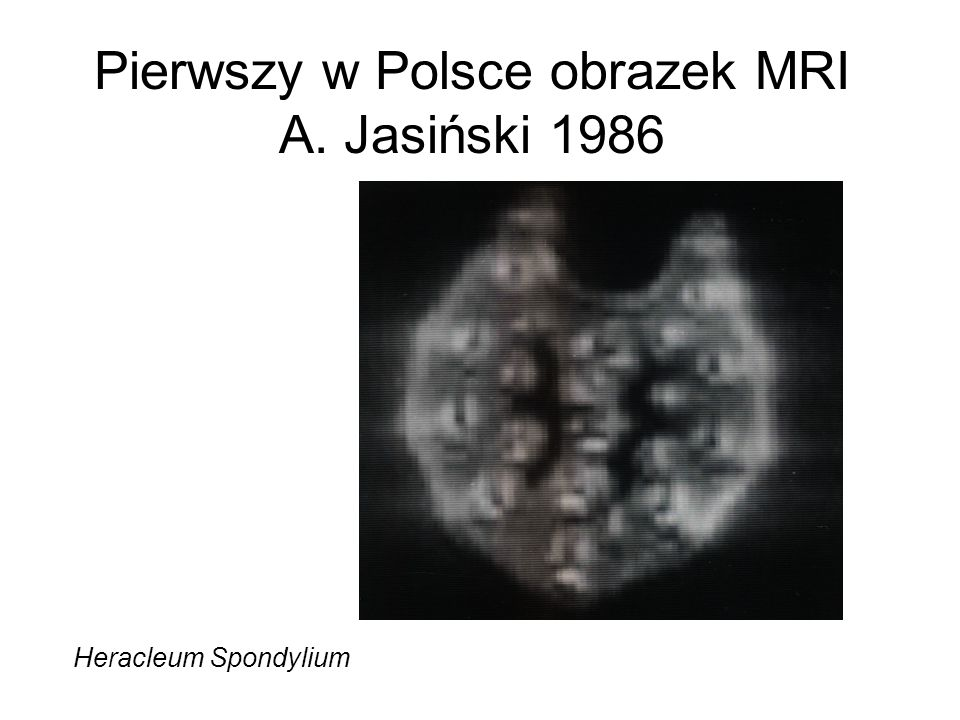 Pierwszy w Polsce obrazek MRI