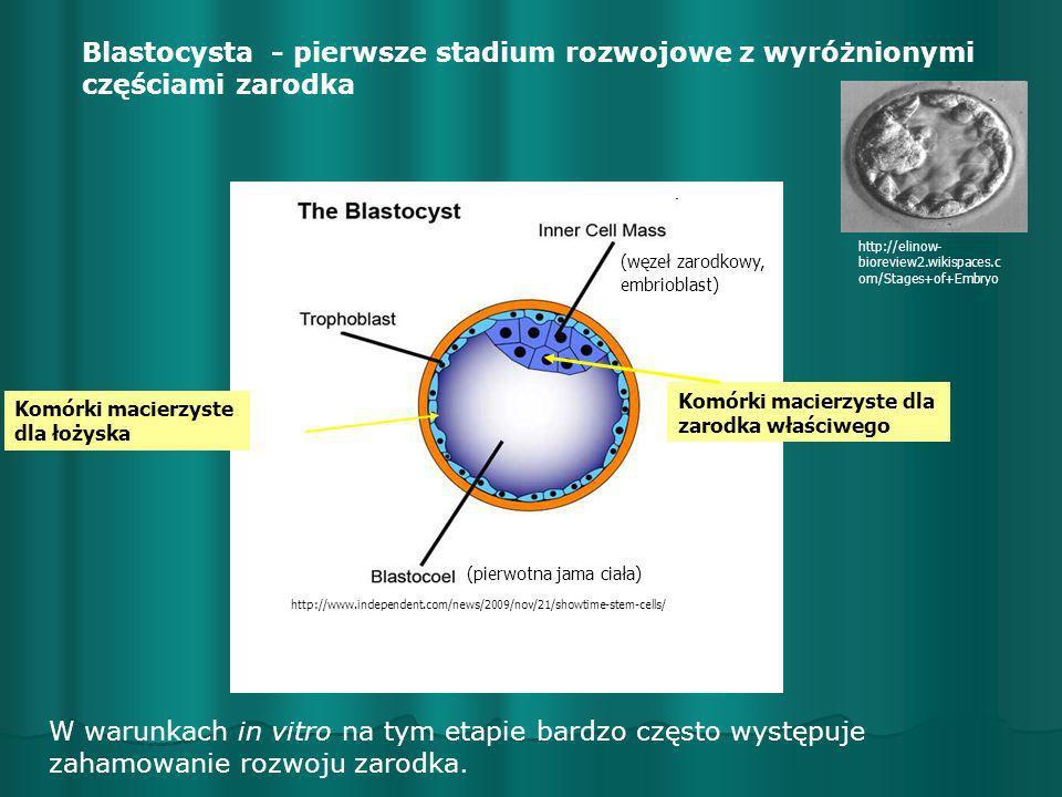 Blastocysta - pierwsze stadium rozwojowe z wyróżnionymi częściami zarodka