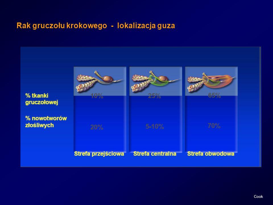Rak gruczołu krokowego - lokalizacja guza
