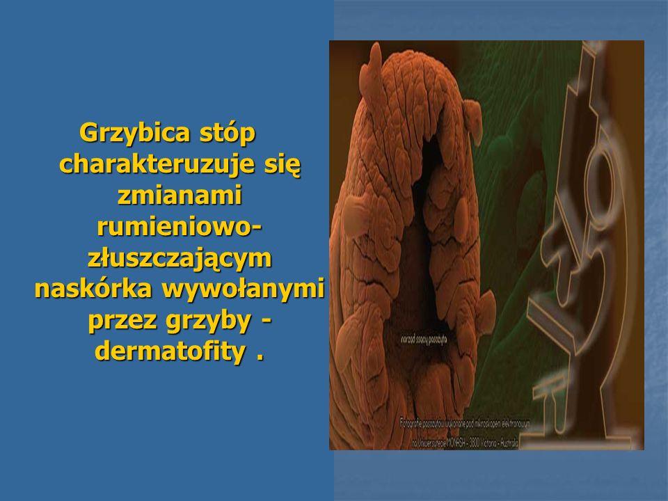 Grzybica stóp charakteruzuje się zmianami rumieniowo-złuszczającym naskórka wywołanymi przez grzyby - dermatofity .