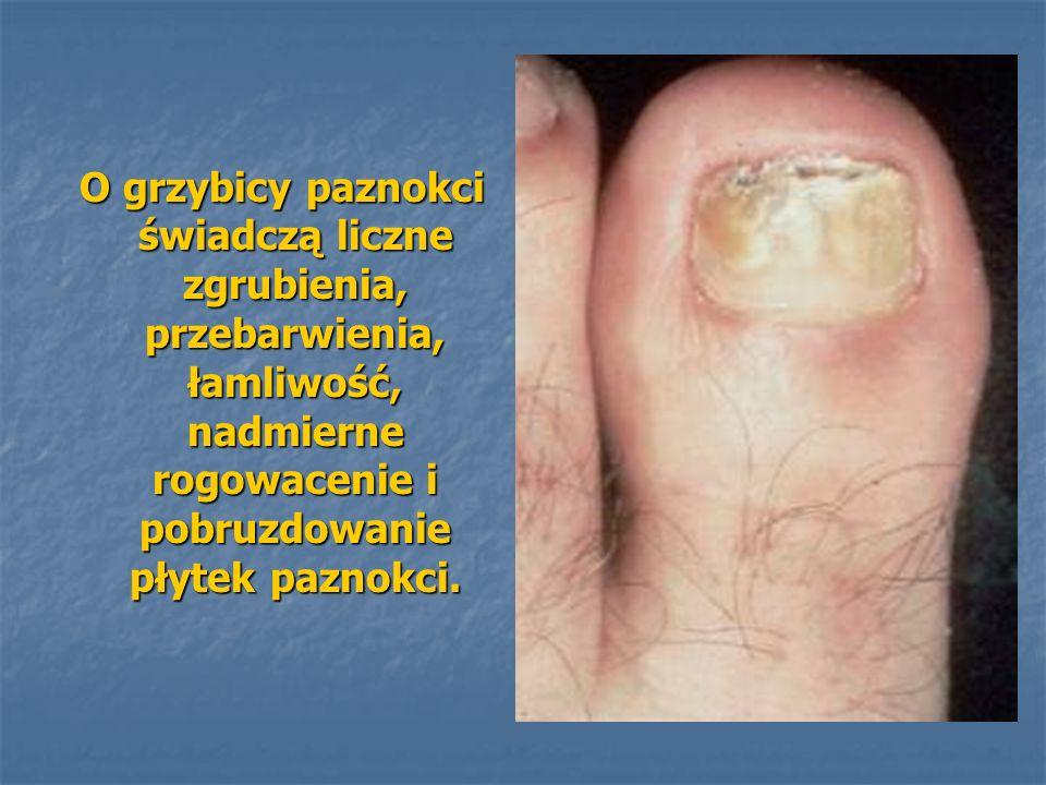 O grzybicy paznokci świadczą liczne zgrubienia, przebarwienia, łamliwość, nadmierne rogowacenie i pobruzdowanie płytek paznokci.
