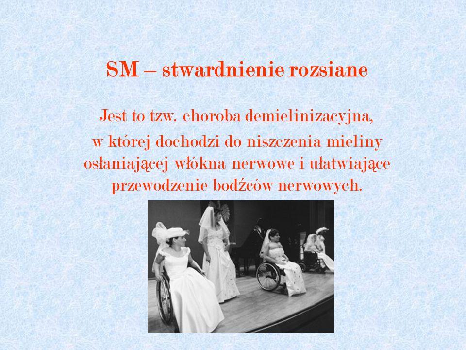 SM – stwardnienie rozsiane