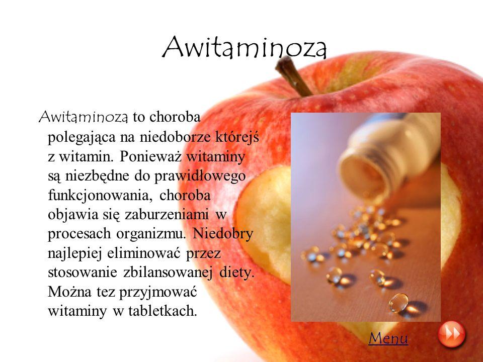 Awitaminoza
