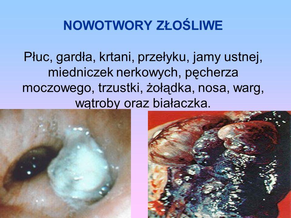 NOWOTWORY ZŁOŚLIWE Płuc, gardła, krtani, przełyku, jamy ustnej, miedniczek nerkowych, pęcherza moczowego, trzustki, żołądka, nosa, warg, wątroby oraz białaczka.