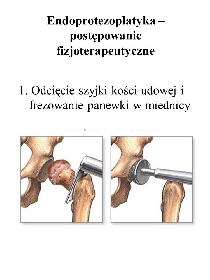 Endoprotezoplatyka – postępowanie fizjoterapeutyczne