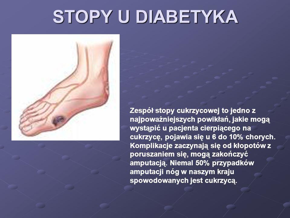 STOPY U DIABETYKA
