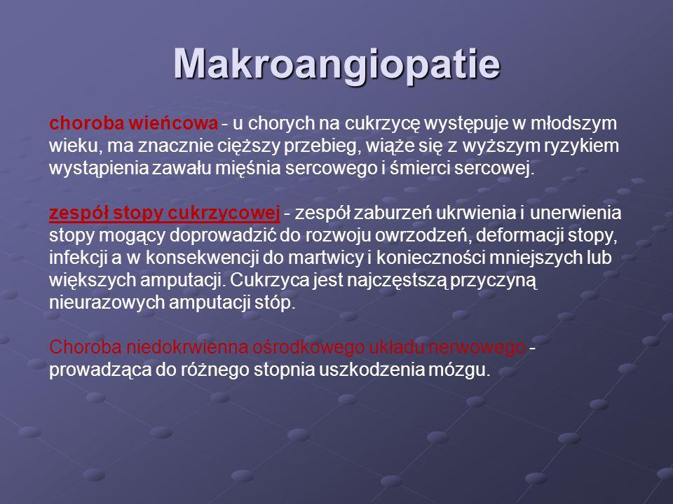 Makroangiopatie