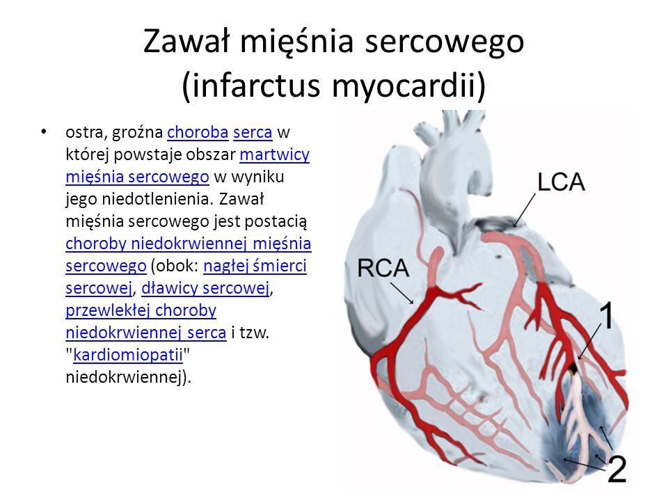 Zawał mięśnia sercowego (infarctus myocardii)