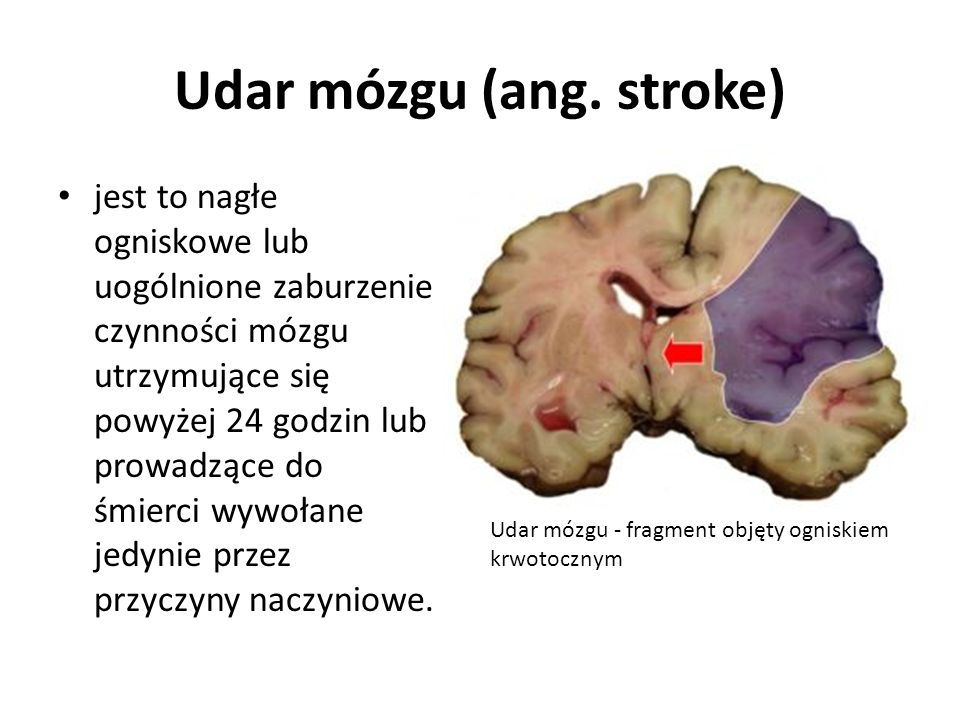 Udar mózgu (ang. stroke)