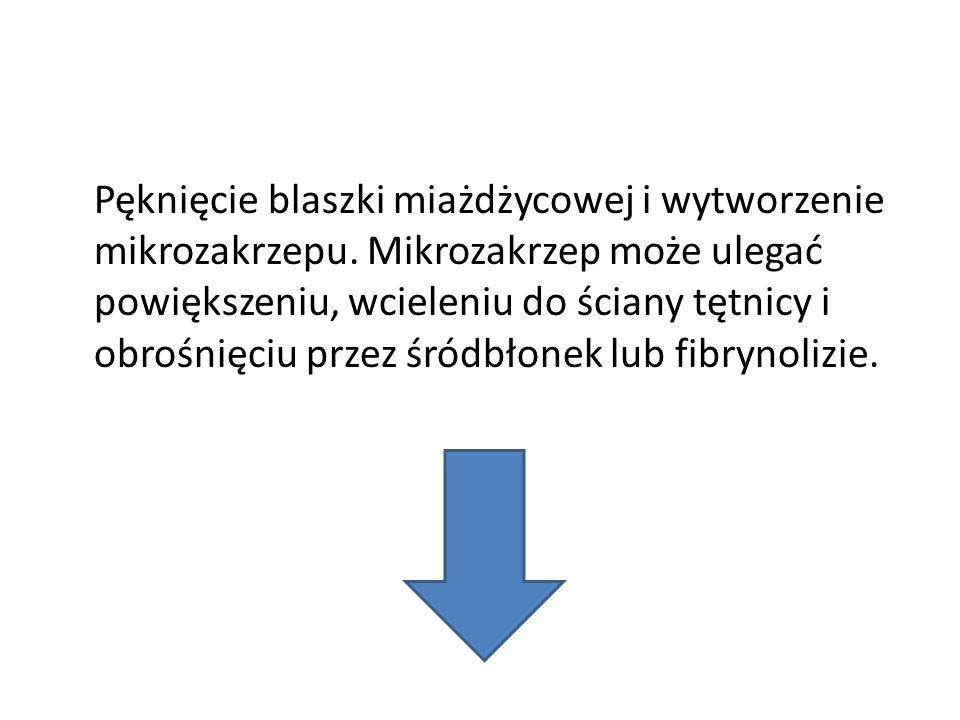 Pęknięcie blaszki miażdżycowej i wytworzenie mikrozakrzepu