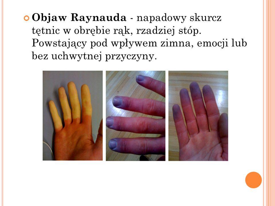 Objaw Raynauda - napadowy skurcz tętnic w obrębie rąk, rzadziej stóp