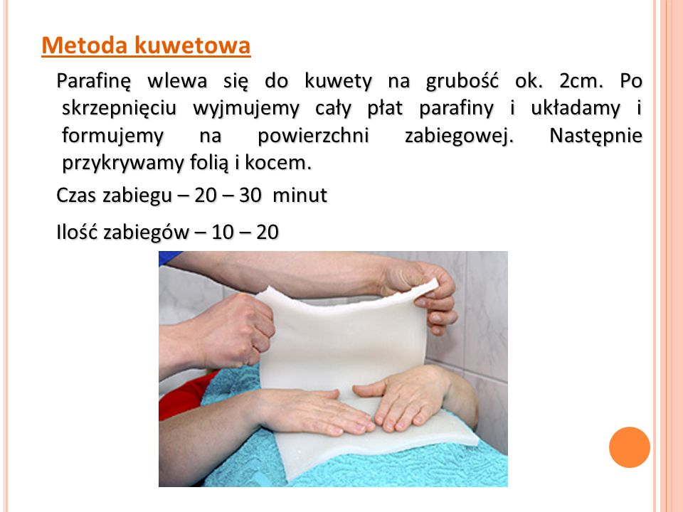 Metoda kuwetowa