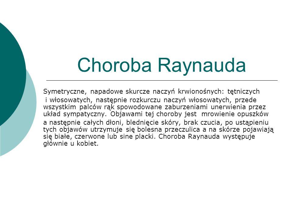 Choroba Raynauda Symetryczne, napadowe skurcze naczyń krwionośnych: tętniczych.