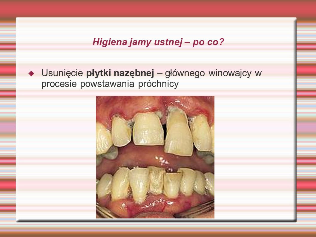 Higiena jamy ustnej – po co