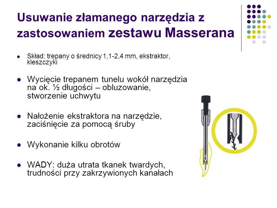Usuwanie złamanego narzędzia z zastosowaniem zestawu Masserana