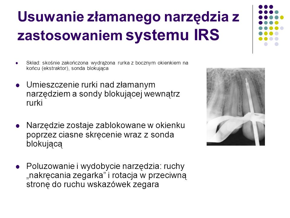 Usuwanie złamanego narzędzia z zastosowaniem systemu IRS