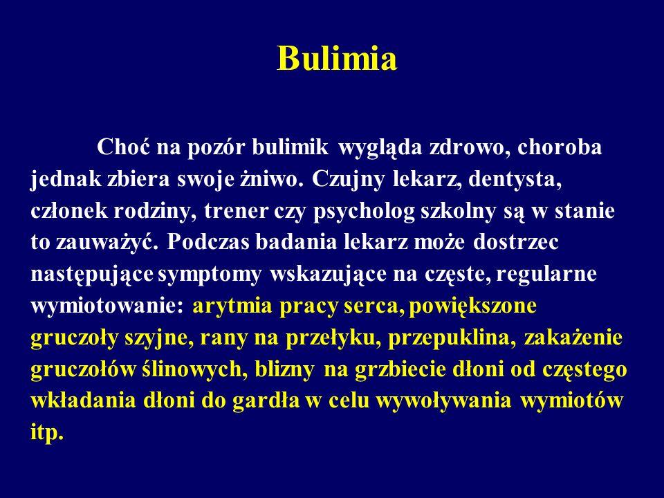 Bulimia Choć na pozór bulimik wygląda zdrowo, choroba