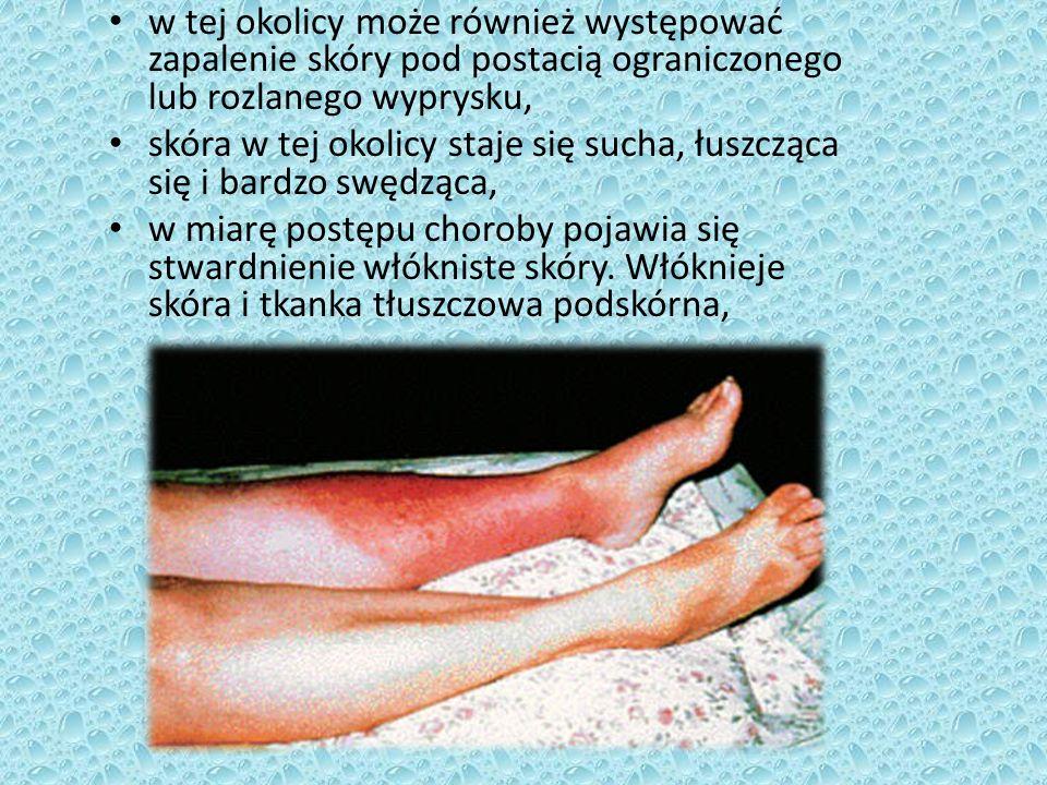 w tej okolicy może również występować zapalenie skóry pod postacią ograniczonego lub rozlanego wyprysku,