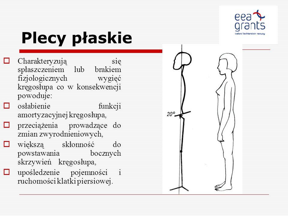 Plecy płaskie Charakteryzują się spłaszczeniem lub brakiem fizjologicznych wygięć kręgosłupa co w konsekwencji powoduje: