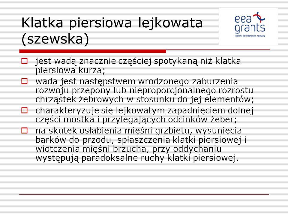 Klatka piersiowa lejkowata (szewska)