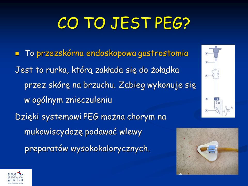 CO TO JEST PEG To przezskórna endoskopowa gastrostomia