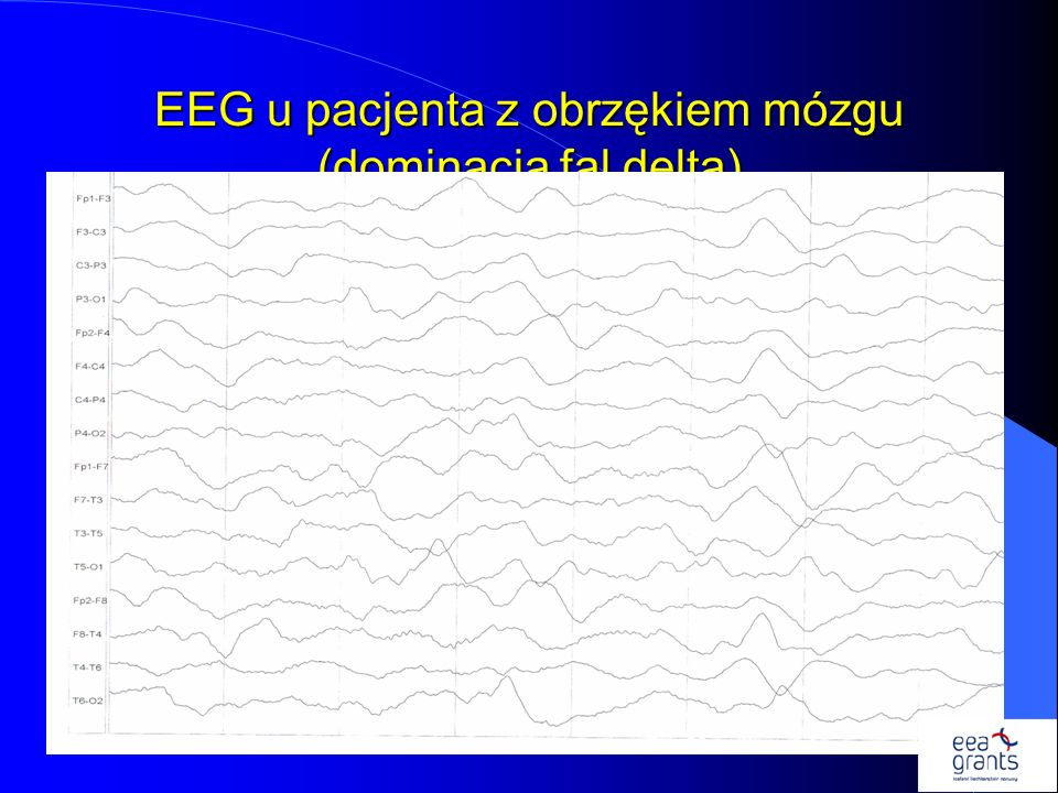 EEG u pacjenta z obrzękiem mózgu (dominacja fal delta)