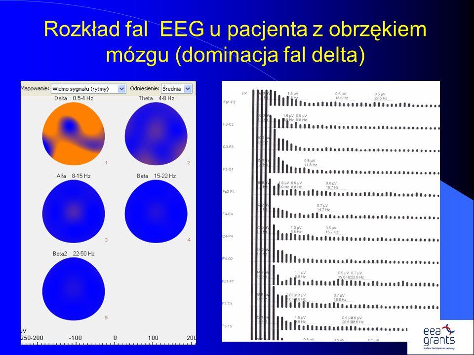 Rozkład fal EEG u pacjenta z obrzękiem mózgu (dominacja fal delta)