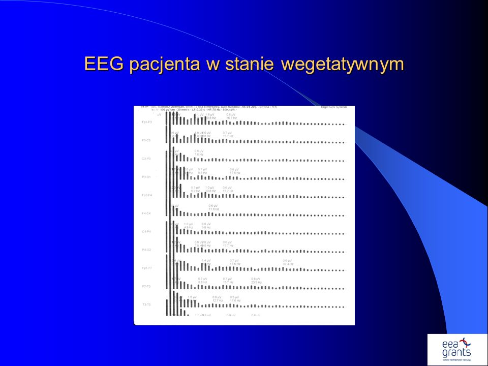 EEG pacjenta w stanie wegetatywnym
