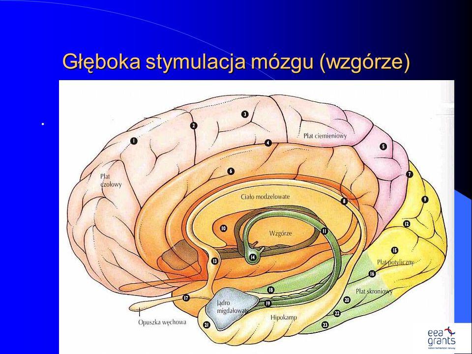 Głęboka stymulacja mózgu (wzgórze)