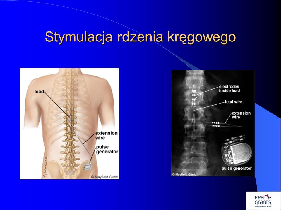 Stymulacja rdzenia kręgowego