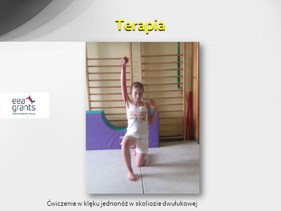 Terapia Ćwiczenie w klęku jednonóż w skoliozie dwułukowej