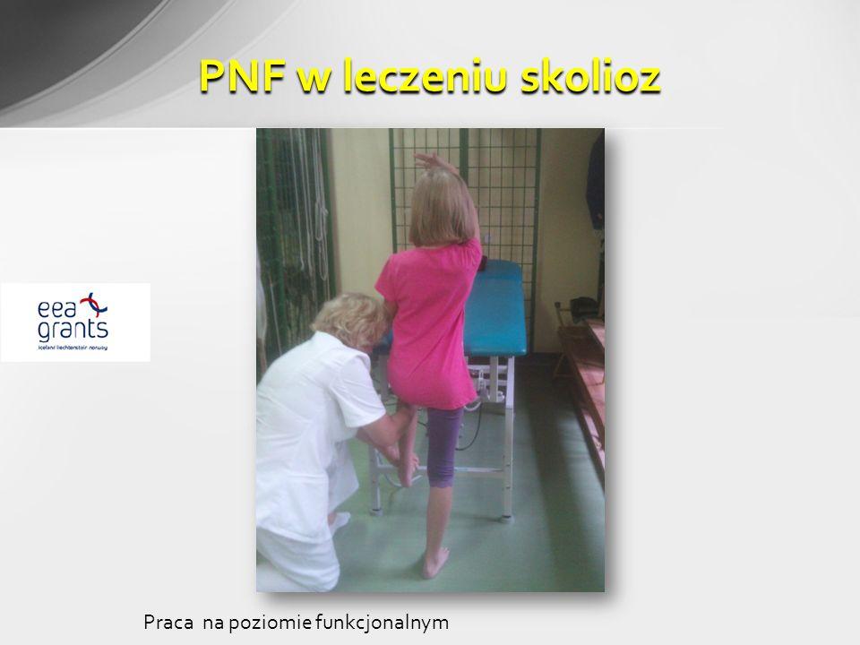 PNF w leczeniu skolioz Praca na poziomie funkcjonalnym