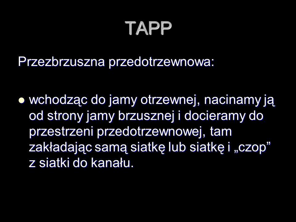 TAPP Przezbrzuszna przedotrzewnowa: