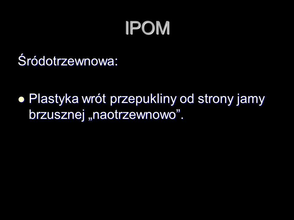 """IPOM Śródotrzewnowa: Plastyka wrót przepukliny od strony jamy brzusznej """"naotrzewnowo ."""