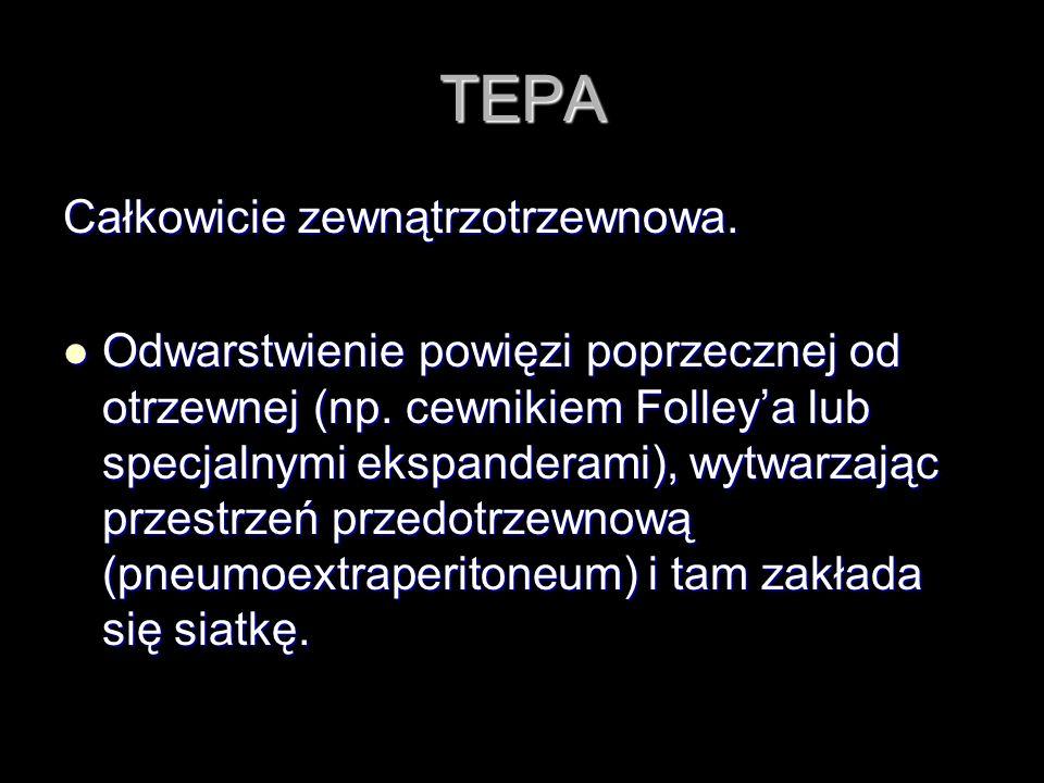 TEPA Całkowicie zewnątrzotrzewnowa.