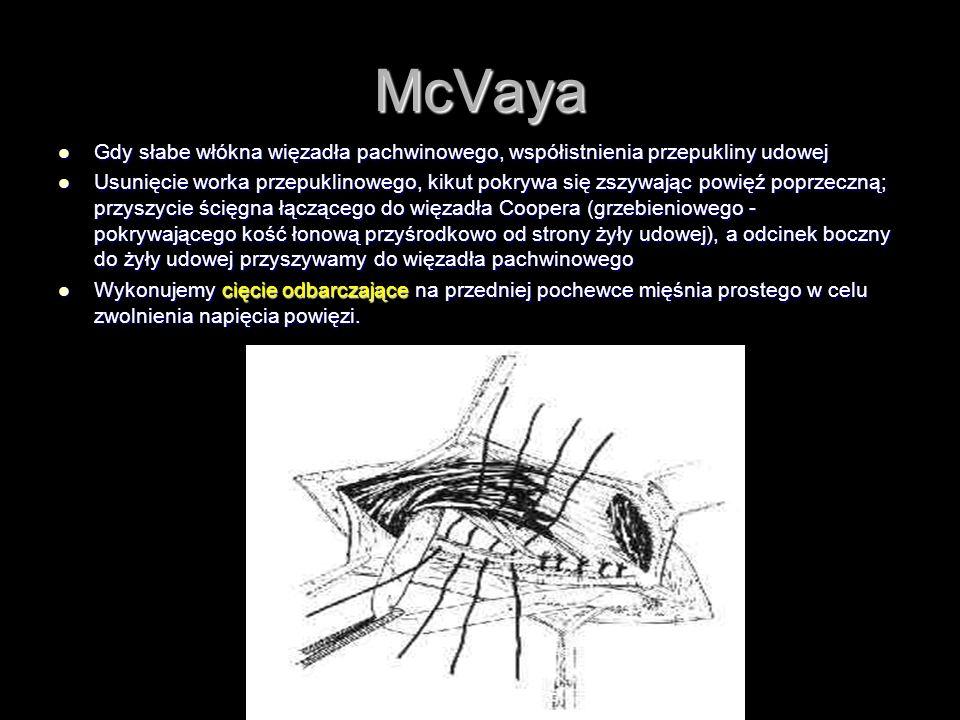 McVaya Gdy słabe włókna więzadła pachwinowego, współistnienia przepukliny udowej.